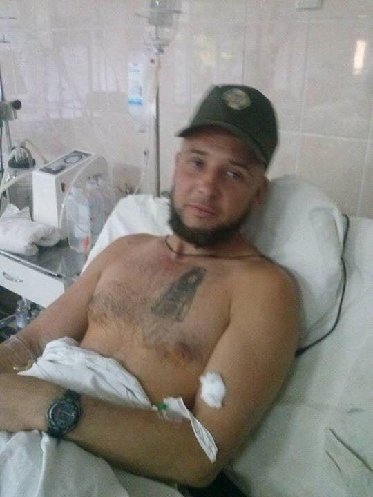 Потерявшему ногу в бою одесскому бойцу собирают всем миром на протез (ФОТО) (фото) - фото 1