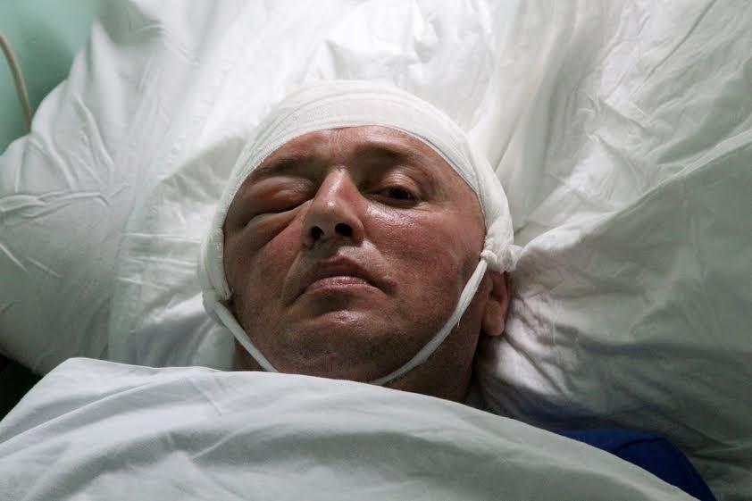 На Львівщині військові хірурги провели юнакові унікальну операцію (ФОТО) (фото) - фото 1