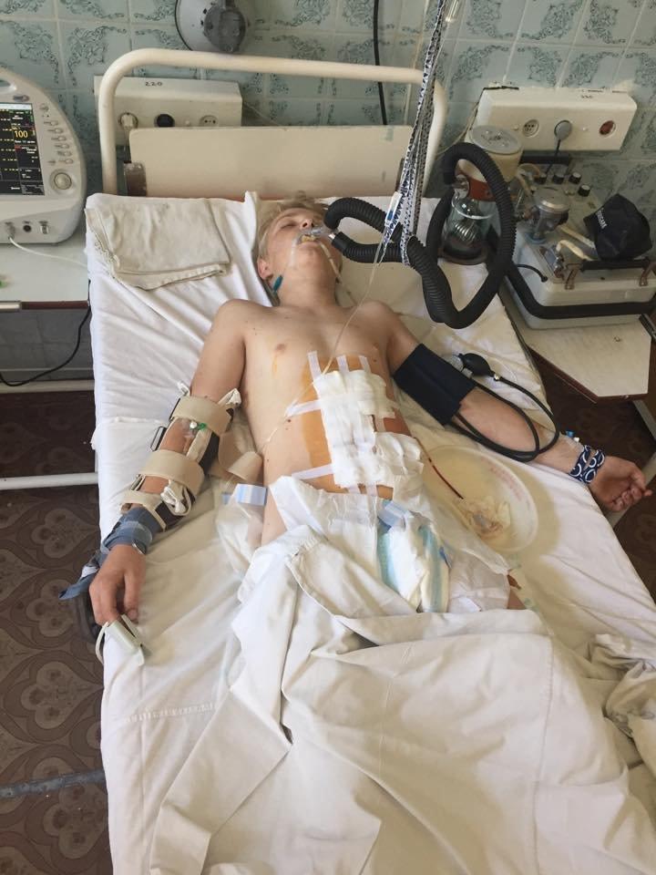 В больницу Мариуполя доставили ребенка, раненого под Волновахой (ФОТО), фото-1