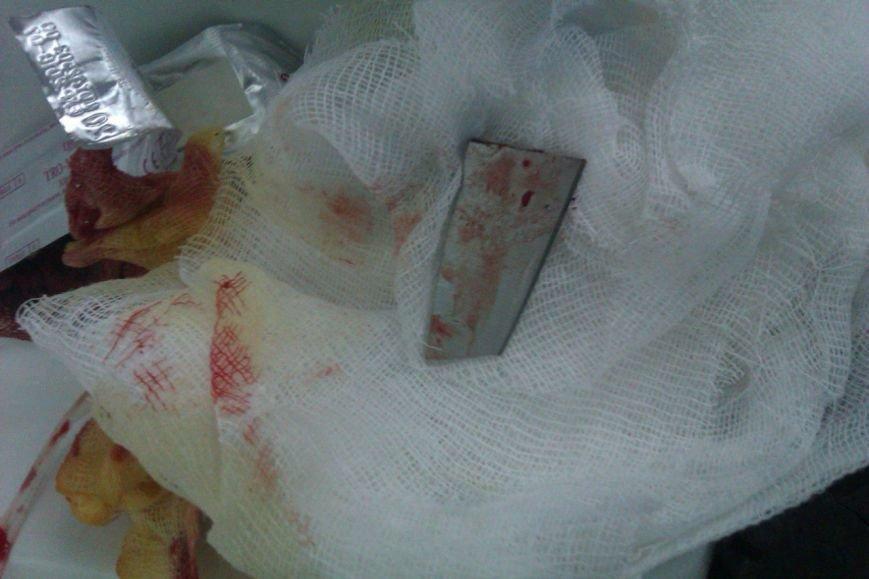 Недовольный днепродзержинец оставил в колене соседа кусок ножа (фото) - фото 1