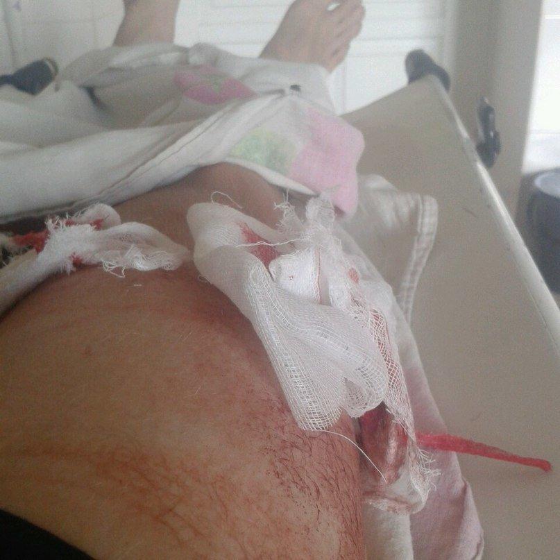 Сбитый криворожский велосипедист: «Водитель, поизвинялся и сказал что меня не увидел» (ФОТО) (фото) - фото 1