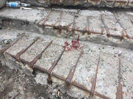 В Киеве неизвестные прострелили голову девушке (ФОТО) (фото) - фото 2