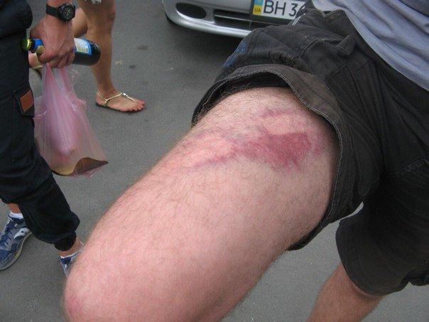 Харьковские ультрас показали раны от дубинок николаевских милиционеров (ФОТО), фото-2