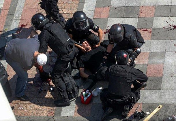 Кровавая децентрализация: на митинге ранены милиционеры, военные и гражданские (фото) - фото 3