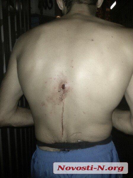 В Николаеве возле «Сотки» подстрелили бойца, вернувшегося с Востока (ФОТО) (фото) - фото 1