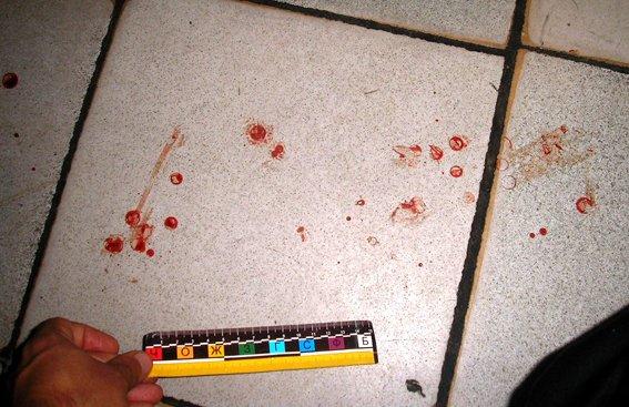 У Рівному чоловік замість подарунка отримав удар ножем (фото) - фото 1