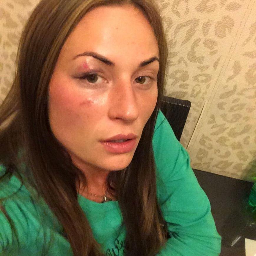 В Киеве избили известную телеведущую (ФОТО), фото-3