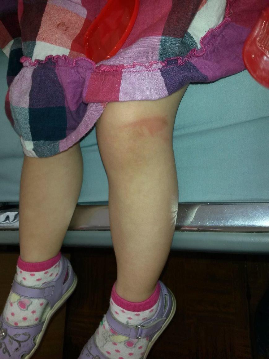 У Тернополі на бульварі Д. Галицького дитину збили веломобілем (фото) - фото 1