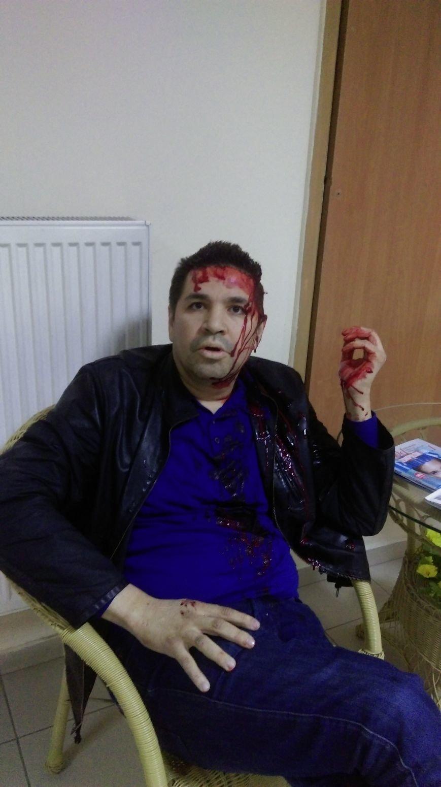 Родзинскому отказали в лечении в городской больнице за критику Кернеса в Черном Зеркале на Интер (фото) - фото 2
