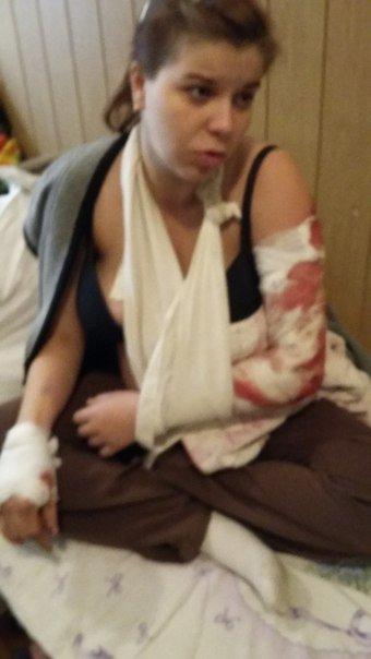 Беременной, пострадавшей в ДТП с николаевской маршруткой, нужна пересадка кожи (ФОТО) (фото) - фото 2