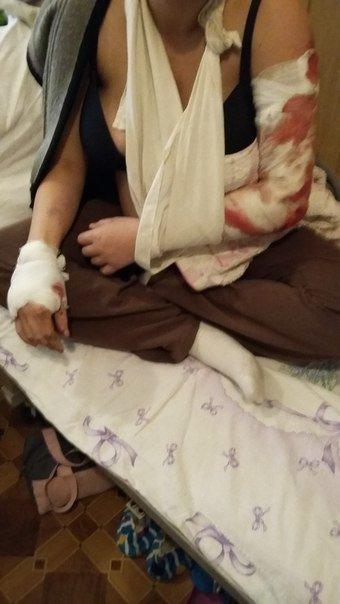 Беременной, пострадавшей в ДТП с николаевской маршруткой, нужна пересадка кожи (ФОТО) (фото) - фото 1