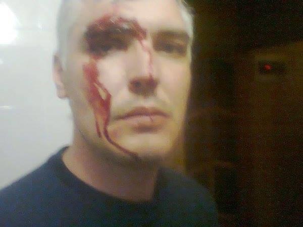 В Харькове ночью неизвестные избили кандидата в депутаты горсовета(ФОТО), фото-1