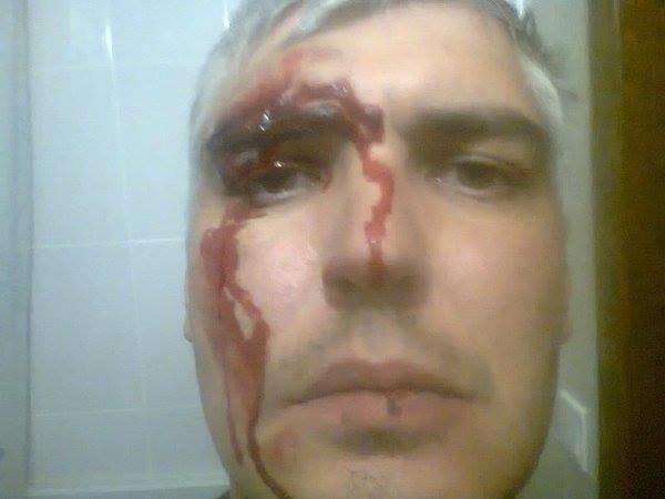 В Харькове ночью неизвестные избили кандидата в депутаты горсовета(ФОТО), фото-2