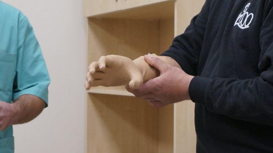 В Одессе бойцу установили протез руки, который работает с помощью сенсоров (ФОТО) (фото) - фото 1