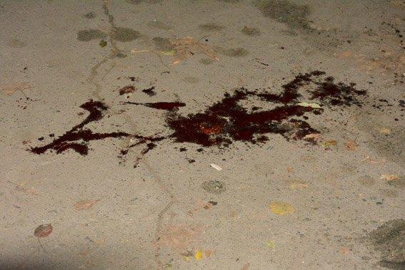 Стрельба возле избирательного участка в Николаеве: количество жертв возросло до 5 человек (ФОТО) (фото) - фото 2