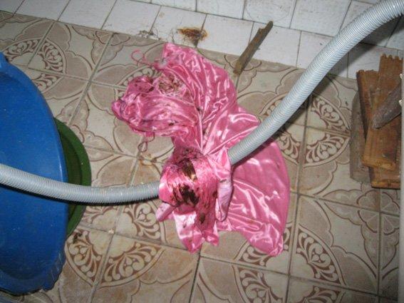 На Сумщине муж жестоко избил спящую жену и облил кислотой (ФОТО). ОБНОВЛЕНО (фото) - фото 1