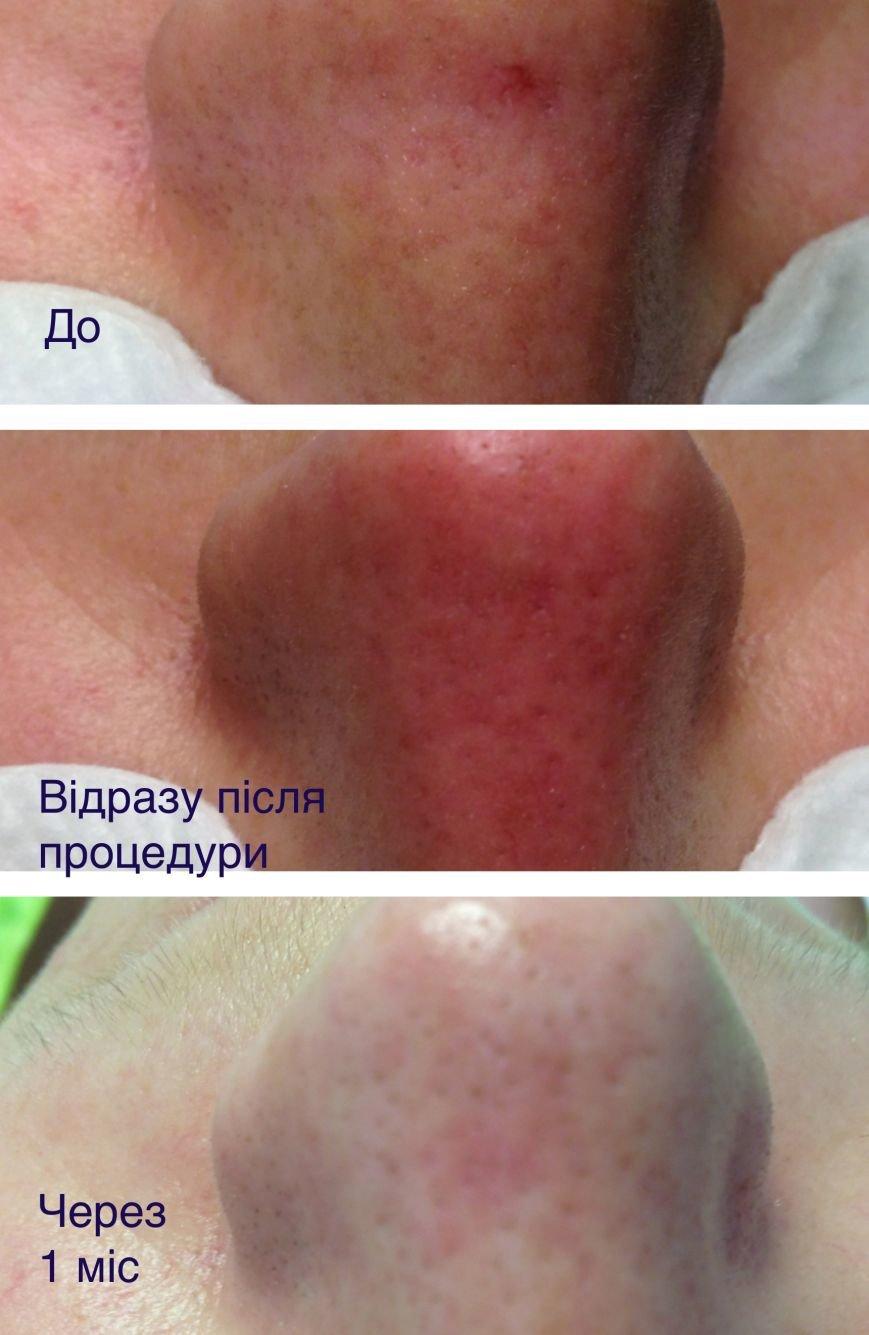 Чи існує у Тернополі лазерна косметологія? Ми в гостях у клініці МОНЕ (фото) - фото 4
