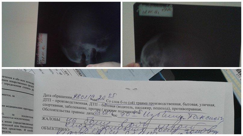 Остросюжетный триллер в Нижневартовске. Девушка-водитель такси избила пассажирку (фото) - фото 1