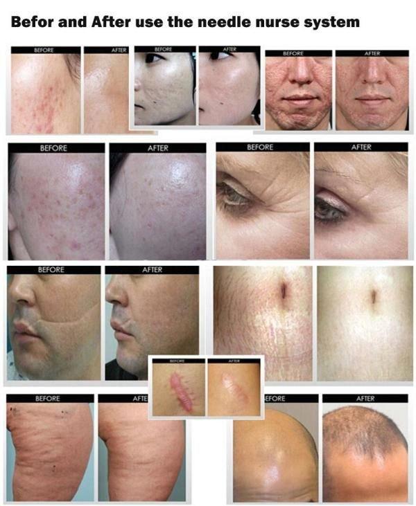 Эффективно решаем проблемы с лицом (фото) - фото 1