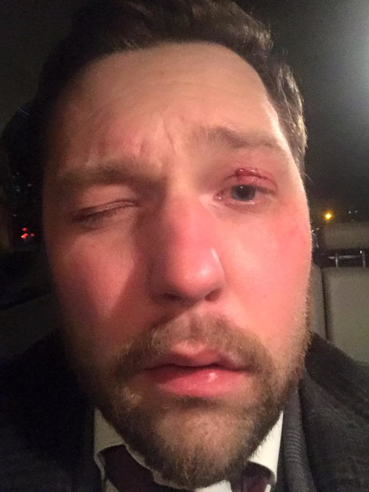 VIP-ДТП: пьяный на BMW протаранил автомобиль адвоката Корбана  (ФОТО), фото-4