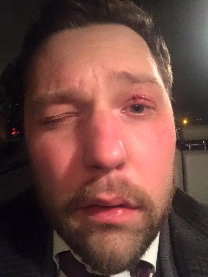 В Киеве в Infiniti адвоката Кернеса врезалось BMW (ФОТО) (фото) - фото 1