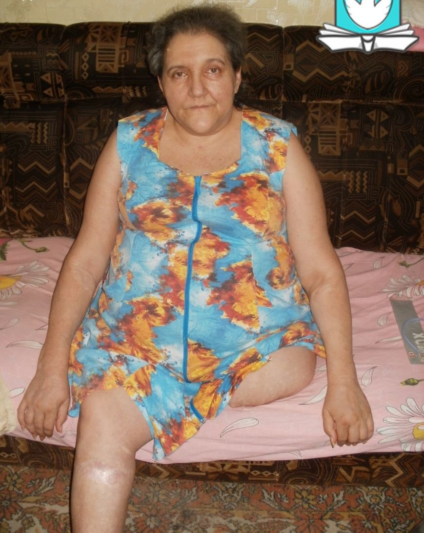 Жительнице Макеевки, потерявшей ногу при обстреле, нужна помощь (фото) - фото 1