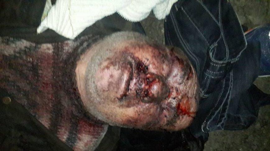 61ae40c88693fb49d42e0e1044b9b946 Под Одессой жестоко избили старика и бросили умирать на улице