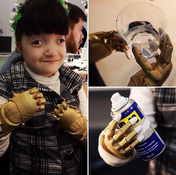 6-летней девочке из Димитровграда сделали золотые ручки, фото-1