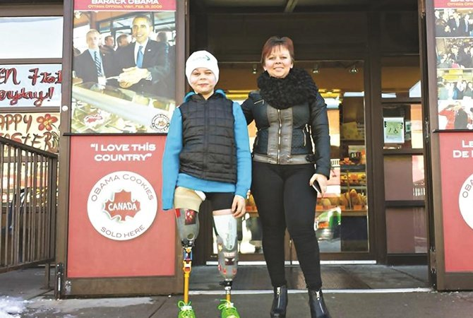 Мальчик потерявший руку и ноги под Мариуполем учится управлять протезами (фото) - фото 1