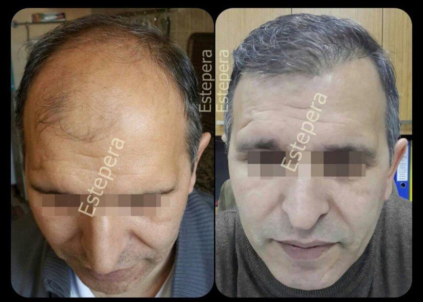 Операция по пересадке волос: современная возможность исправить генетические недостатки (ФОТО) (фото) - фото 1