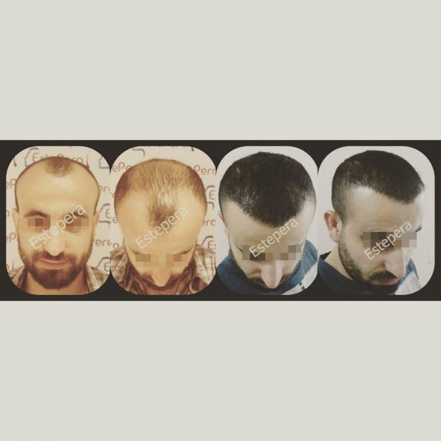 Почему у мужчин не растут волосы на голове и бороде? (ФОТО, ВИДЕО) (фото) - фото 1