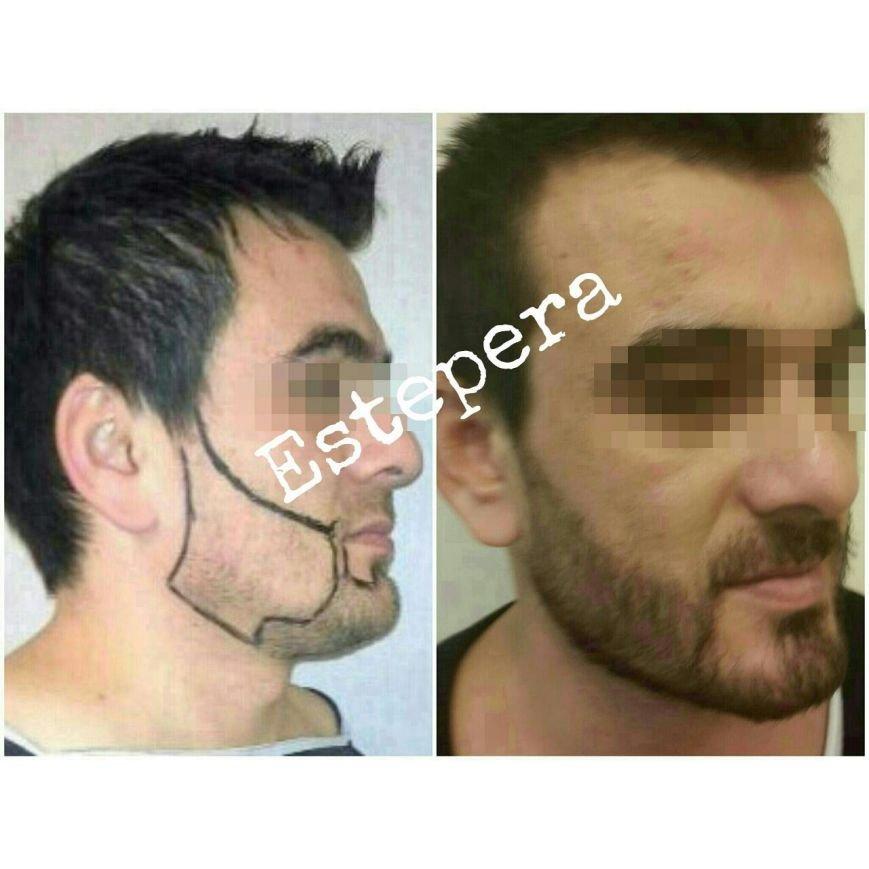 Почему у мужчин не растут волосы на голове и бороде? (ФОТО, ВИДЕО) (фото) - фото 2
