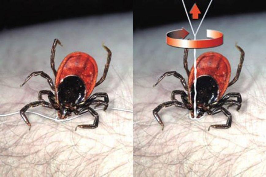 Що робити хмельничанину, якщо його укусив кліщ (Фото) (фото) - фото 1