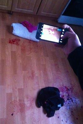 У Чернівцях гуляння закінчились ножовими пораненнями, фото-1