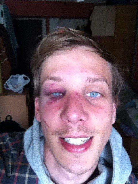 В Киеве возле паба избили студента (ФОТО), фото-1