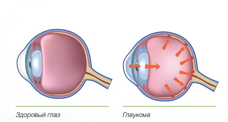 глаукома_1