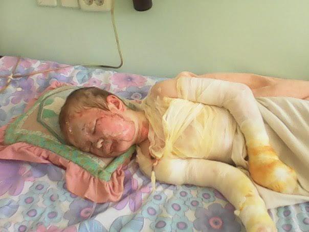 Мать с дочерью, пострадавшие во время взрыва в Мариуполе, находятся в крайне тяжелом состоянии (ФОТО), фото-4