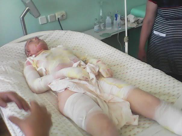 Мать с дочерью, пострадавшие во время взрыва в Мариуполе, находятся в крайне тяжелом состоянии (ФОТО), фото-3