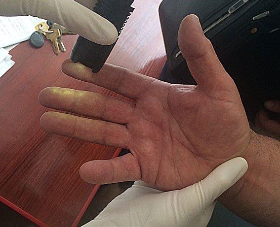 У Львові лікар-хабарник вимагав від пацієнта 500 доларів за безоплатну допомогу (ФОТО), фото-1