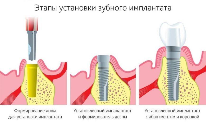 Стоит ли вставлять зубной имплант