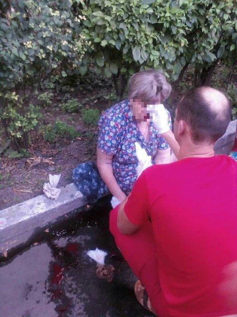 В Кропивницком иномарка сбила пенсионерку (ФОТО), фото-1