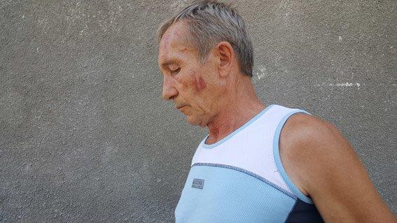 На Николаевщине местные жители подрались из-за спорного имущества (ФОТО), фото-1