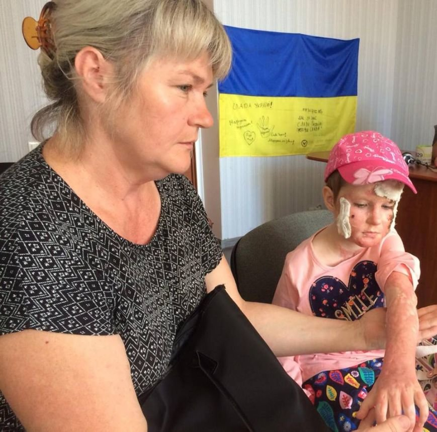 Мариупольской семье, которая пострадала от взрыва газа, нужна помощь (ФОТО, ВИДЕО), фото-1
