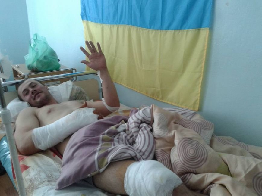Под Мариуполем прошел массированный обстрел украинских позиций. Военный госпиталь заполнен ранеными (ФОТО+ДОПОЛНЕНО), фото-1