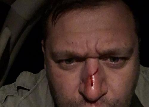 Добкин на охоте разбил себе ружьем нос (ФОТО), фото-2