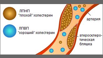 холестерин2
