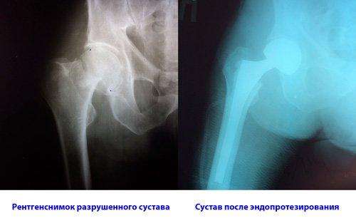 Рентгенснимки до операции и после замены сустава