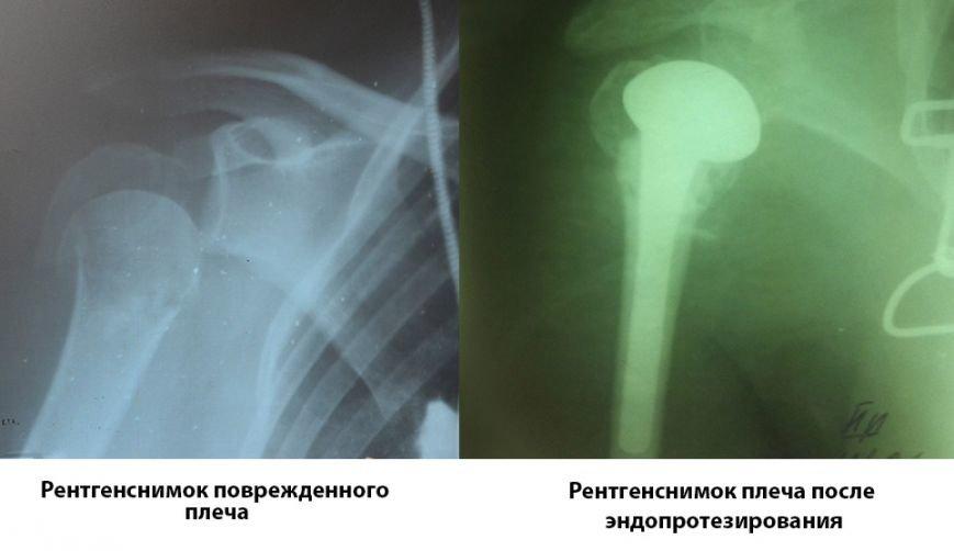 Рентгенснимки до и после эндопротезирования