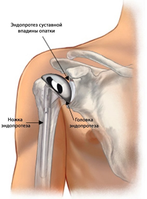 Схематическое расположение эндопротеза в плече