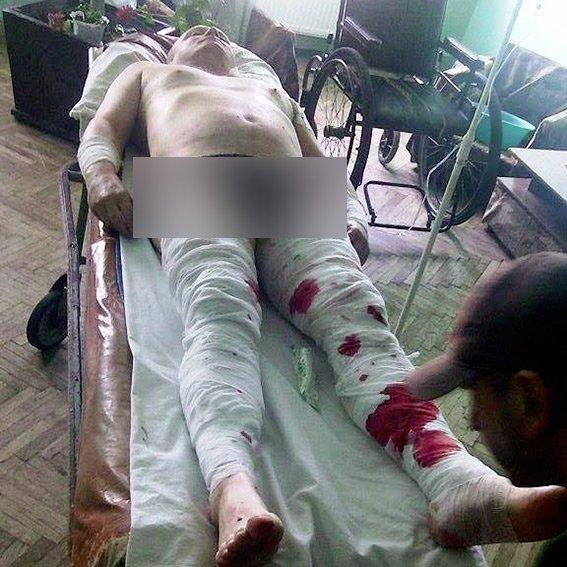 У спробі вбити снятинського чиновника підозрюють одіозного пенсіонера, — поліція. Фото, фото-1